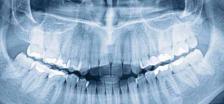 Что такое ортопантомограмма?